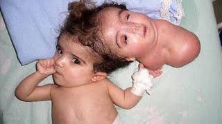 Kembar Siam Terunik Di Dunia